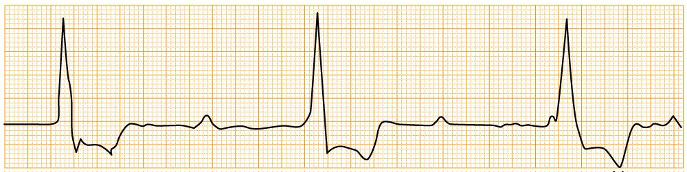緊急度の高い不整脈 - III度房室ブロック