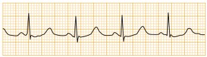 緊急度の高い不整脈 - 正常洞調律