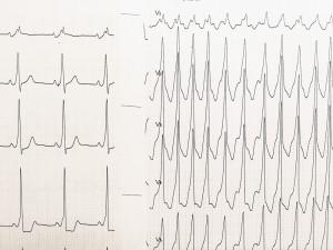心室細動-VTの実波形