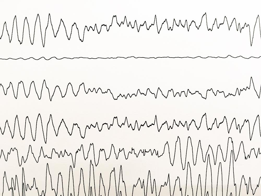 WPW症候群の実波形