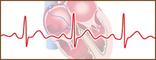 心電図個別指導 事例紹介のイメージ