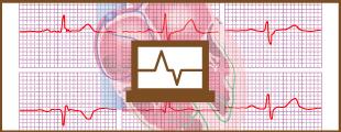 心電図個別指導のイメージ