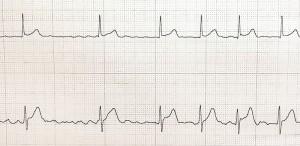 心房細動の実波形