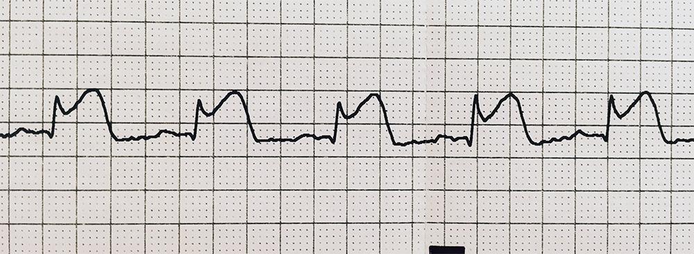 急性心筋梗塞の実波形