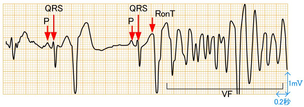 アーチファクト - 心室細動の波形と特徴