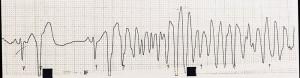 心室細動の実波形